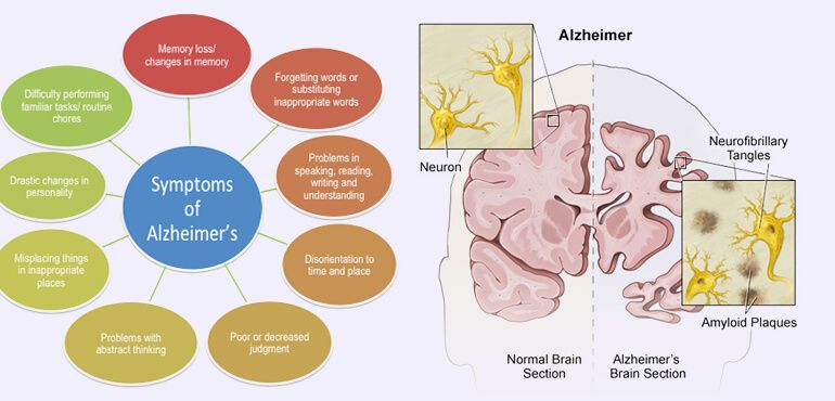 Human Brain Diseases List - Causes, Symptoms and Treatments