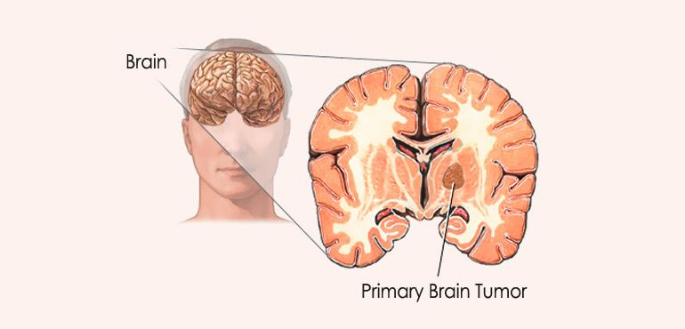 human brain facts about parts etc - humanbrainfacts, Muscles